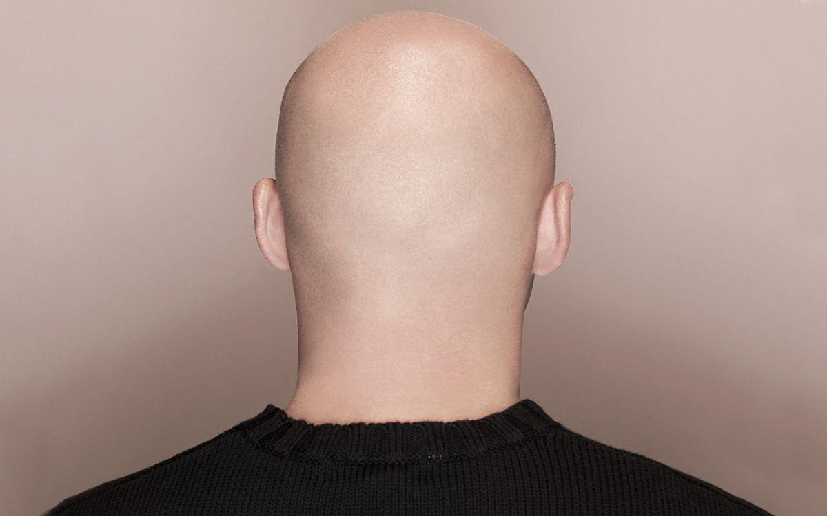 Мужчина стоит спиной и показывает лысую голову